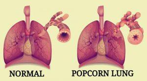 Pop-Corn Lung